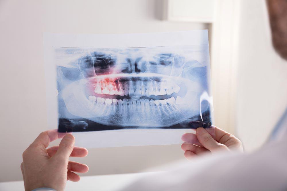 douleur-aux-dents-de-sagesse