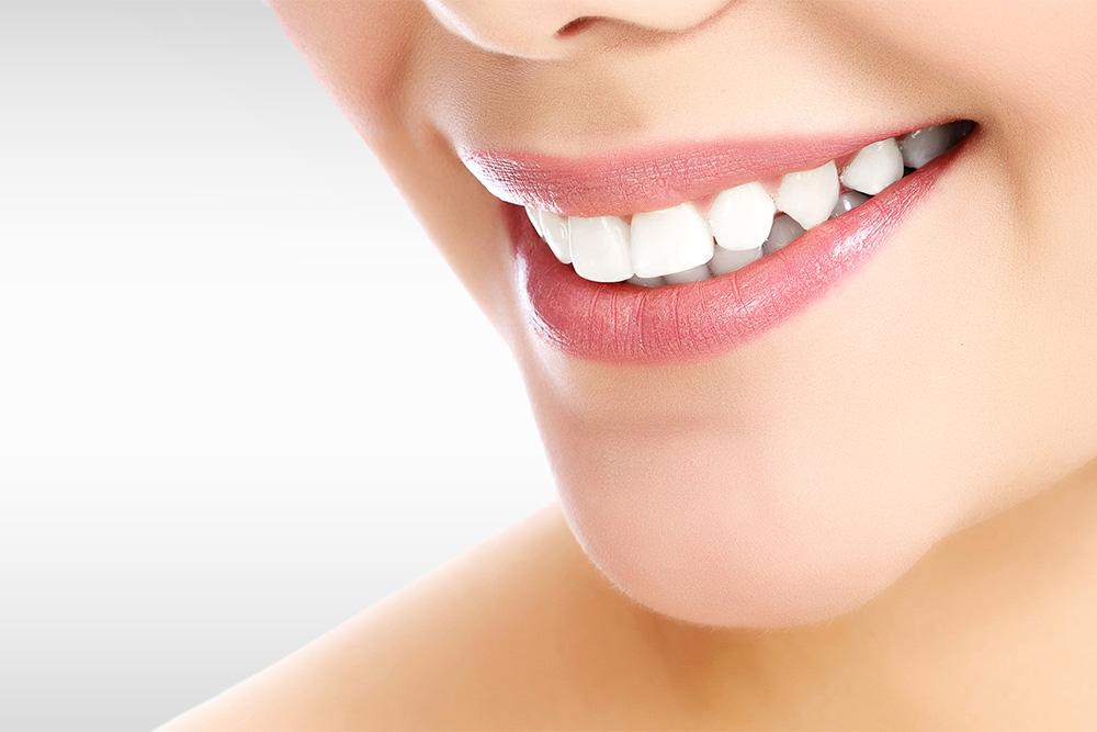 blanchiment-dents-dentiste